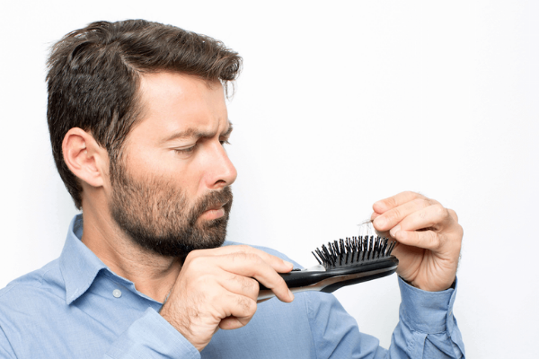 Hair Loss and Baldness: Does minoxidil work?