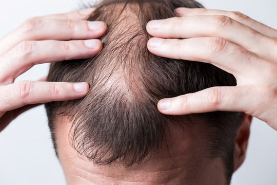 Can biotin help to cure male pattern baldness?
