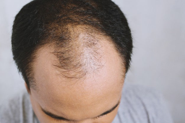 how to avoid male pattern baldness