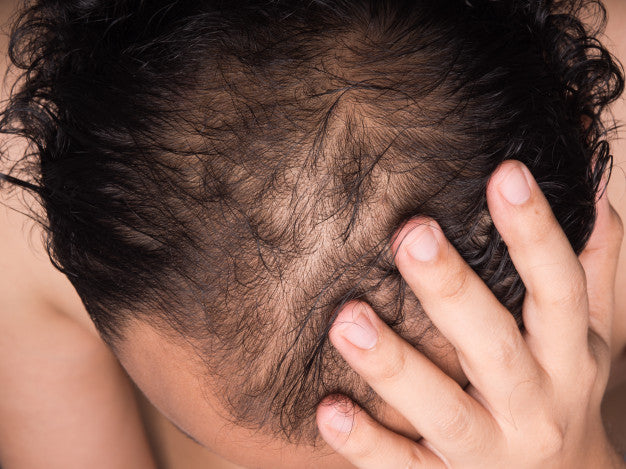 Why is my hair thinning and shedding? I am only 17