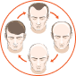 Excess level of DHT on scalp