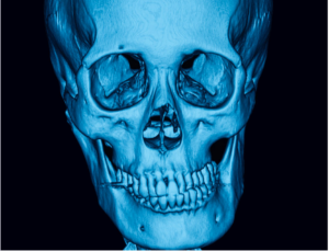 TMJ on Xray imaging