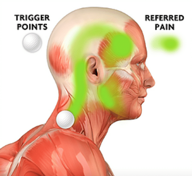 Trigger points neck to head