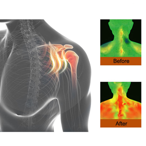 50% OFF 🔥 | LH™ Self-heating Tourmaline Shoulder Magnetic Therapy