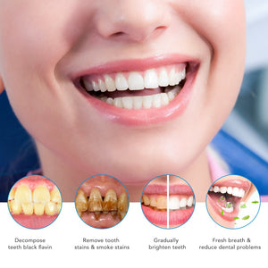 Smile Reviving Whitenting Kit with Gels
