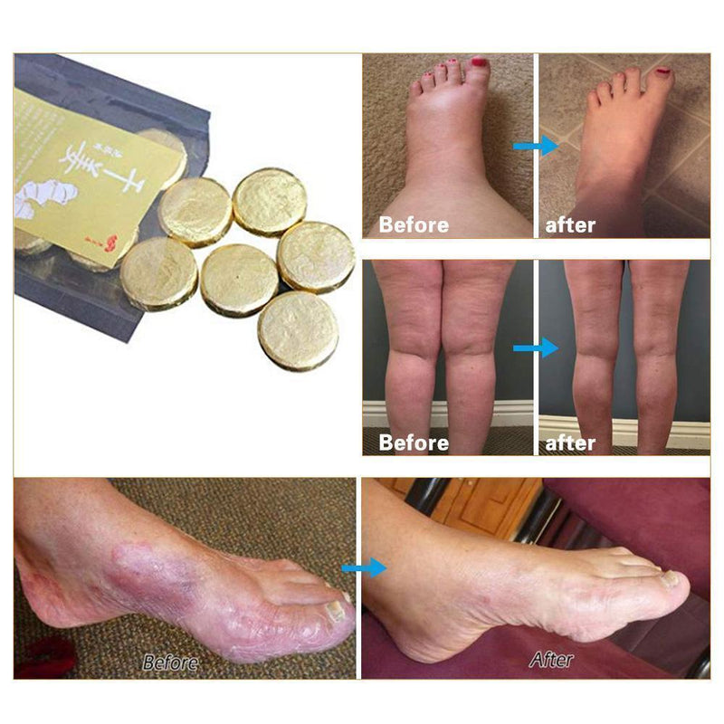 Anti-Swelling & Fungal Foot SPA