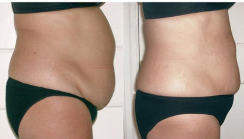 Body sculpting non invasive lipo dallas