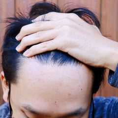 man suffering from spots close to his hairline due to cosmetic products