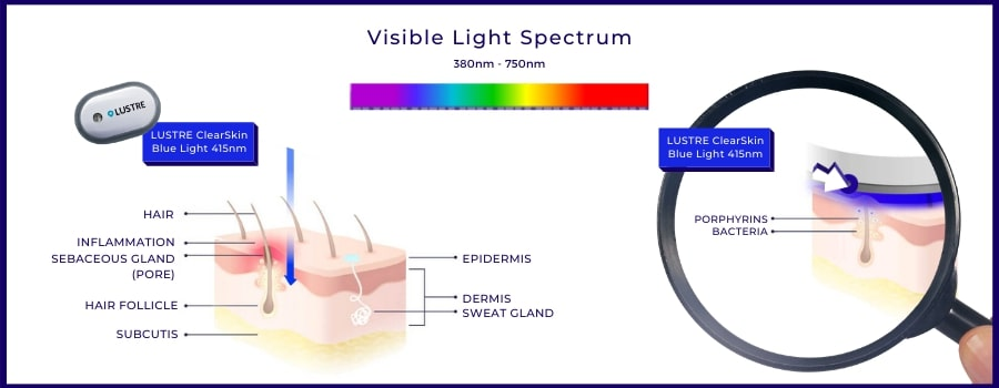 LUSTRE ClearSkin, acne treatment naturally with blue light therapy