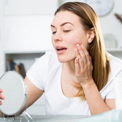 young woman suffering from acne on her cheek looking in the mirror