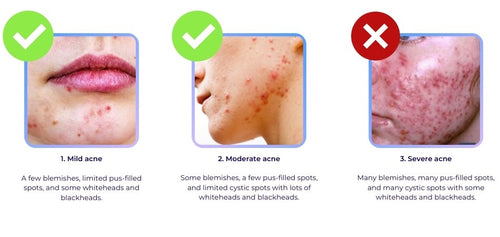Stages of Acne: Mild, Moderate and Severe