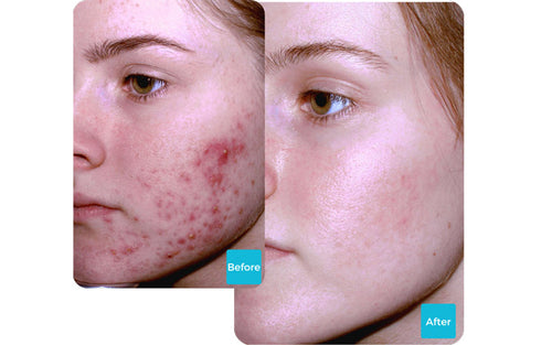 Results-of-using-LUSTRE-ClearSkin-Blue-Light-Technology-to-treat-acne