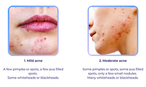 Types of acne: mild and moderate acne