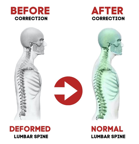 before after fitnessafe neck and back pain