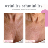 CHEST WRINKLE PATCH