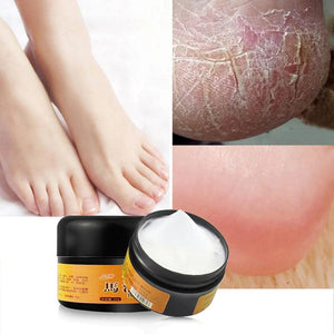 30g Natural Horse Oil Hand Foot Peeling Repair Cream Feet Massage For Athlete's Feet Itch Blisters Anti-chapping Foot Care TSLM2