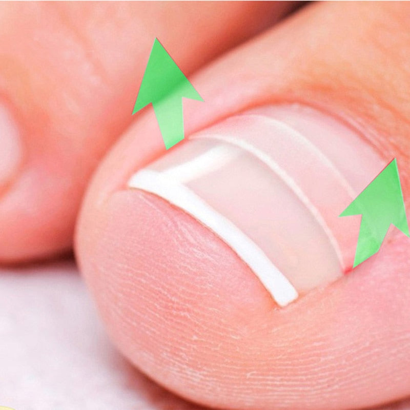 NEW 10pcs/box Ingrown Toe Nail Correction Sticker Patch Paronychia Correction File Acronyx Wire Corrector Foot Care Treatment