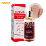 LANBENA Nail Repair Essence Serum Fungal Nail Treatment Remove Onychomycosis Toe Nourishing Brighten Hand Foot Skin Care 12ml