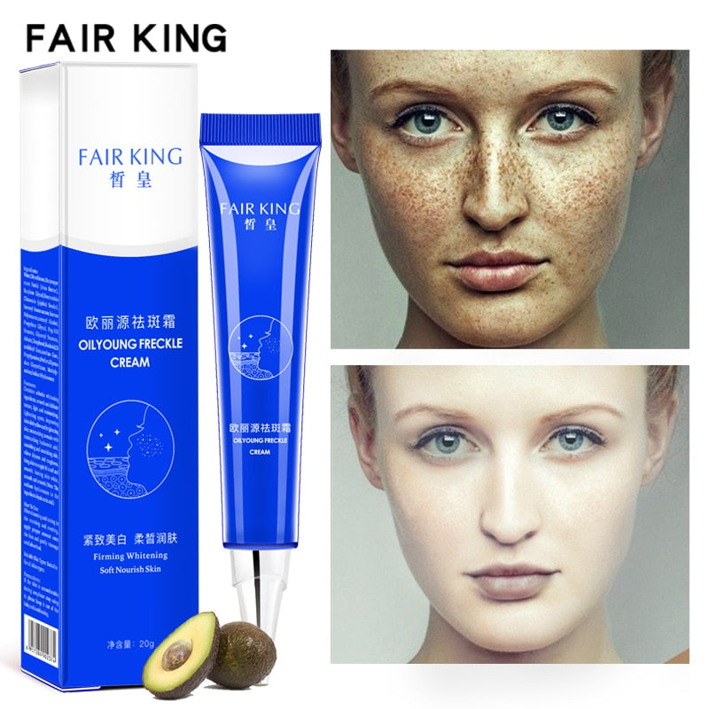 Dark Spot Corrector Skin Whitening Fade Cream Lightening Blemish Removal Serum Reduces Age Spots Freckles Face Cream 20g