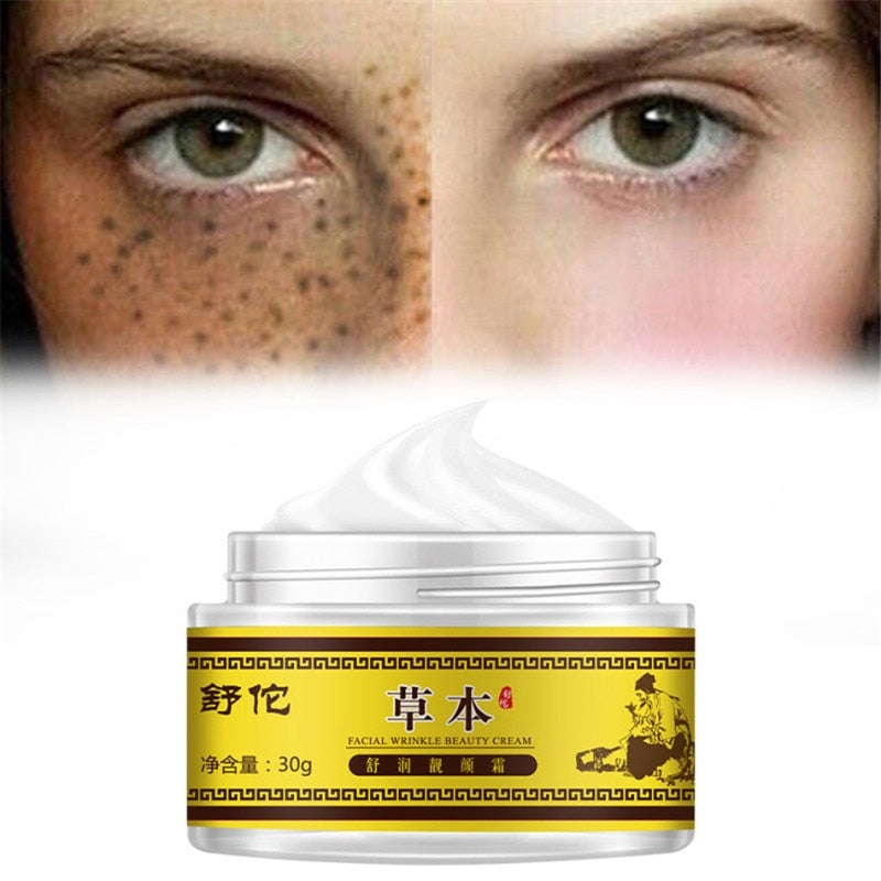 Whitening Freckle Cream Facial Removal Face Care Repair Remove Dark Spots Remover Cream Brightening Treatment
