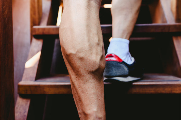 Do Men Get Varicose Veins? Yes! Here's What Causes Them