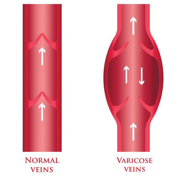 What Are Varicose Veins? What Causes and Prevents Them?