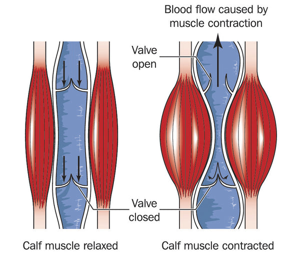 Varicose veins - how the calf muscle pump or peripheral heart works
