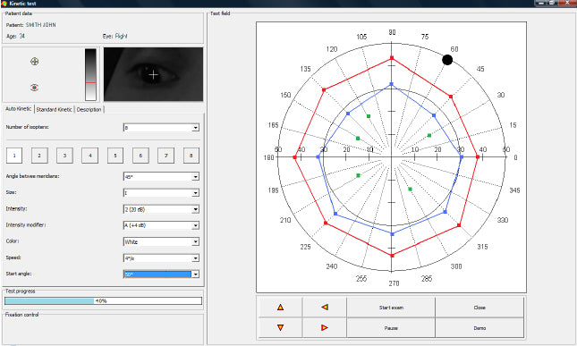 Automated Kinetic and Static Perimeter with Embedded PC with Mount with Monitor AP-300 frey - us ophthalmic