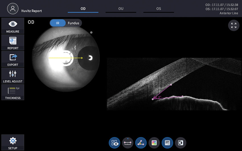 optical coherence tomography hoct-1F con angio huvitz - us ophthalmic