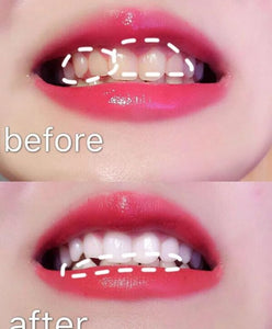 20 minutes fast teeth whitening