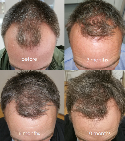 Growth results hair zinc DOES ANYONE