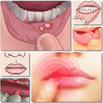 Load image into Gallery viewer, Mouth Ulcer Relief Gel