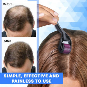 Hair Regrowth Activating Roller