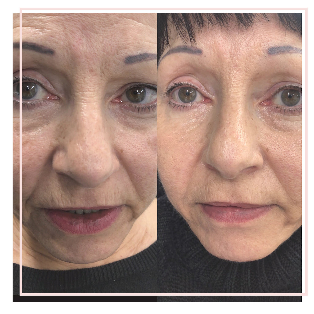 The Eight Point Lift (Full Facial Rejuvenation)