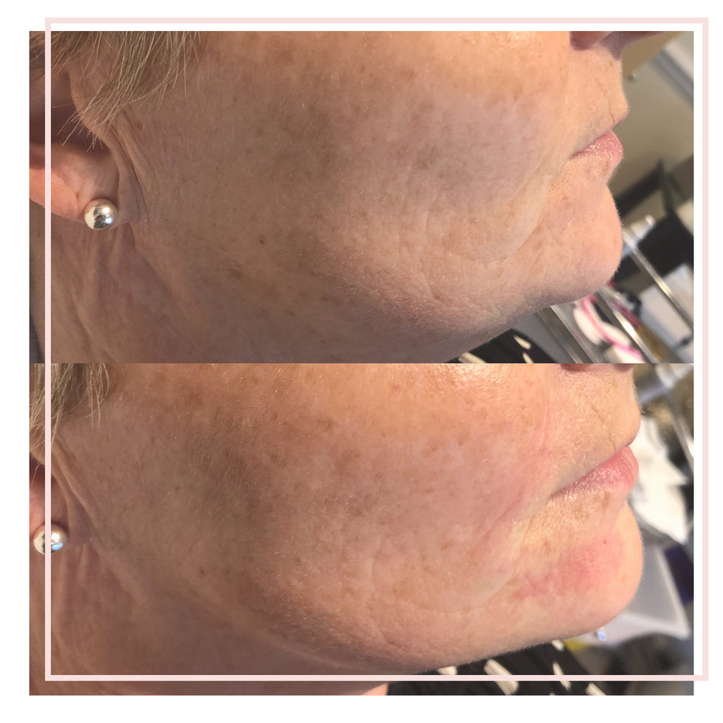 Jawline Rejuvenation and Sculpting.