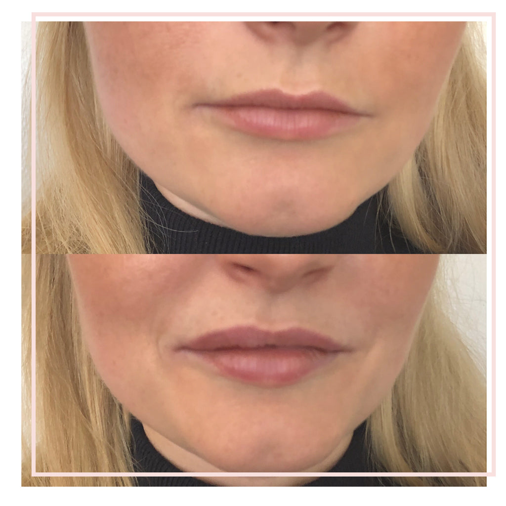 Lip Dermal Filler Treatment.