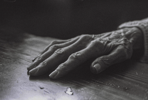study of old gran's arthritic hand