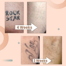 Load image into Gallery viewer, TatOFF 4 Weeks Tattoo Removal Cream