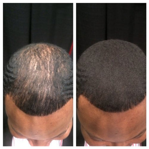 360 Waves Itchy Scalp
