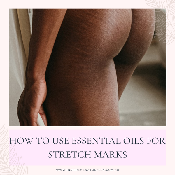 How to Use Essential Oils for Stretch Marks