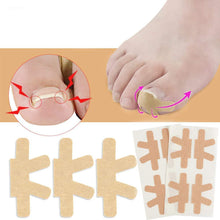 Load image into Gallery viewer, Toenail Correction Stickers(NAIL-NN0001-T024)