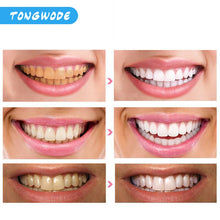 Load image into Gallery viewer, Fast Teeth Whitening Lamp With LED Light Dental Bleaching Set Tooth Stains Removal Tooth Whitening Equipment Oral Care - My Little Decors.com