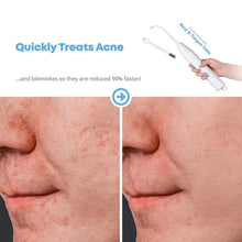 Load image into Gallery viewer, D'arsonval 4 In 1 High Frequency Electrotherapy Electrode Light Acne Wand Skin Care Spot Acne Remover Facial Spa Beauty Machine - My Little Decors.com