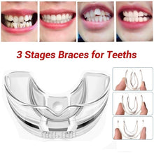Load image into Gallery viewer, 3 Stages Dental Orthodontic Braces Appliance Braces Alignment Trainer Teeth Retainer Bruxism Mouth Guard Teeth Straightener - My Little Decors.com