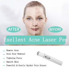 Load image into Gallery viewer, Heath Blue Light Therapy Varicose Veins Treatment Laser Pen Soft Scar Wrinkle Removal Treatment Acne Laser Pen Massage Relax - My Little Decors.com