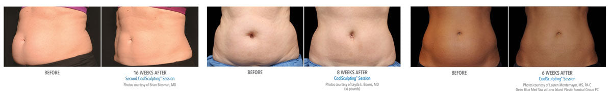 CoolSculpting® stomach examples at Euphoria Wellness Spa