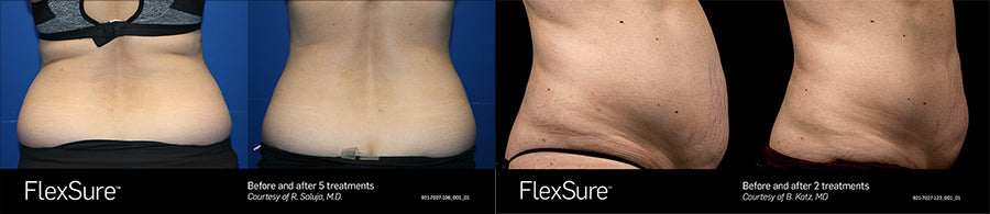 Flexsure Before and After Photos