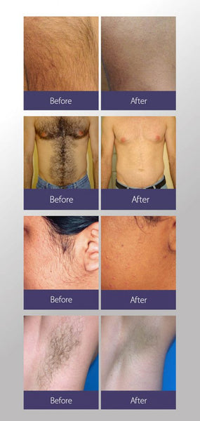 Brand NEW at Euphoria Wellness Spa!  Laser Hair Removal