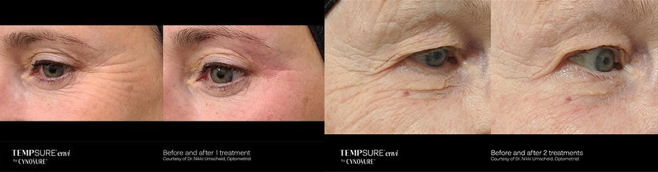 Tempsure Before and After at Euphoria Wellness Spa Peterborough