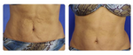 SkinTyte Laser Skin Tightening